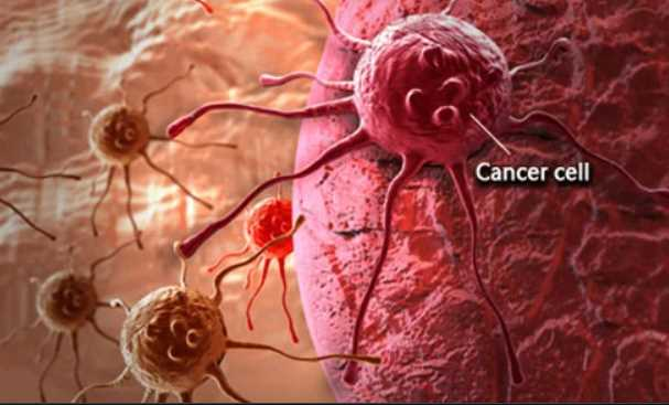 7 Signs and Symptoms of Cancer