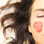 Best Ways to Get Rid of Acne Scars
